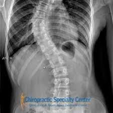 Skoliosis, Kelengkungan Abnormal Tulang Belakang yang Bisa Dinormalkan